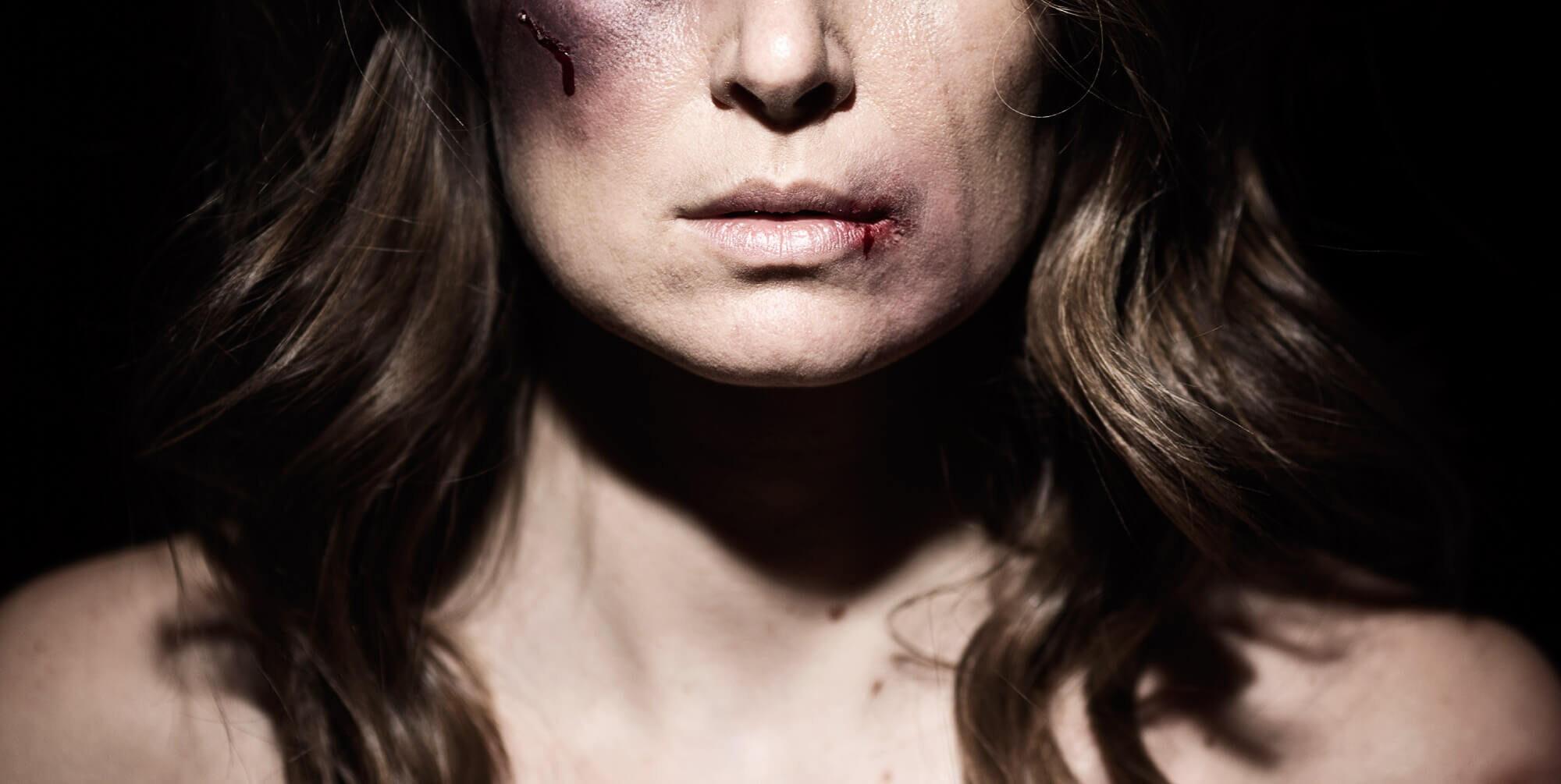 SNW-Website-Battle-Scars-2000x1005